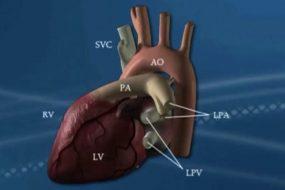 Transposición de Grandes Arterias