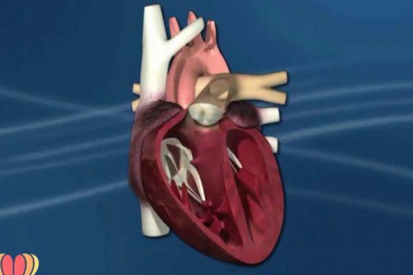 Retorno Venoso Pulmonar Anómalo Total