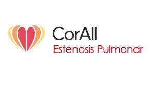 Estenosis Pulmonar
